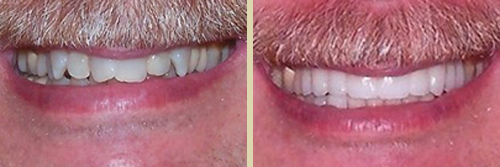 Before and After Photo of Dental Patient 12