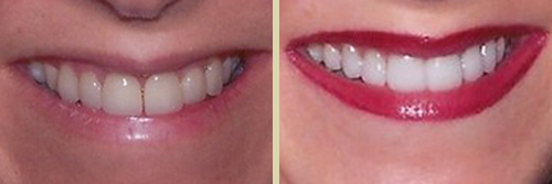 Before and After Photo of Dental Patient 13