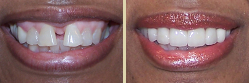 Before and After Photo of Dental Patient 14