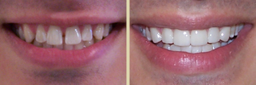Before and After Photo of Dental Patient 15