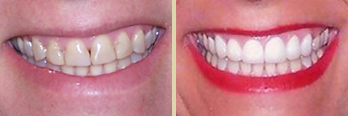 Before and After Photo of Dental Patient 16