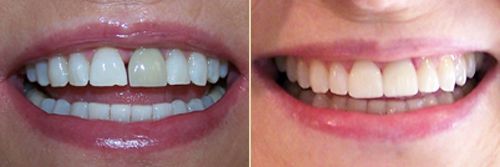 Before and After Photo of Dental Patient 20