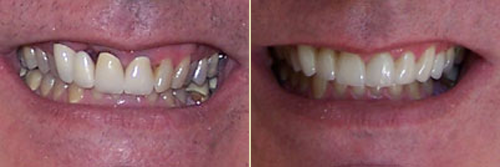 Before and After Photo of Dental Patient 21