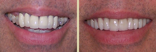 Before and After Photo of Dental Patient 4