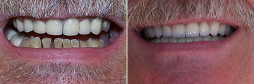 Before and After Photo of Dental Patient 22