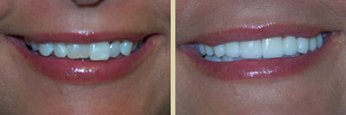 Before and After Photo of Dental Patient 5