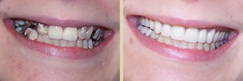 Before and After Photo of Dental Patient 6