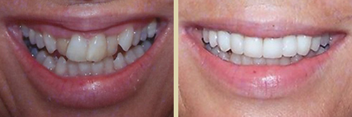 Before and After Photo of Dental Patient 7