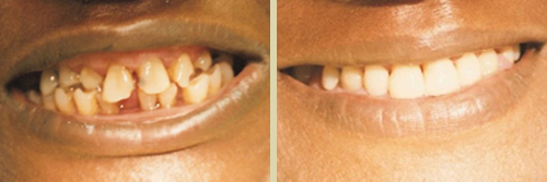 Before and After Photo of Dental Patient 9
