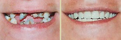 Before and After Photo of Dental Patient 10
