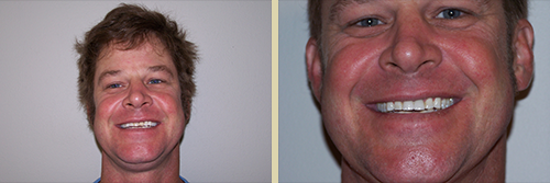 Before and After Photo of Dental Patient 26